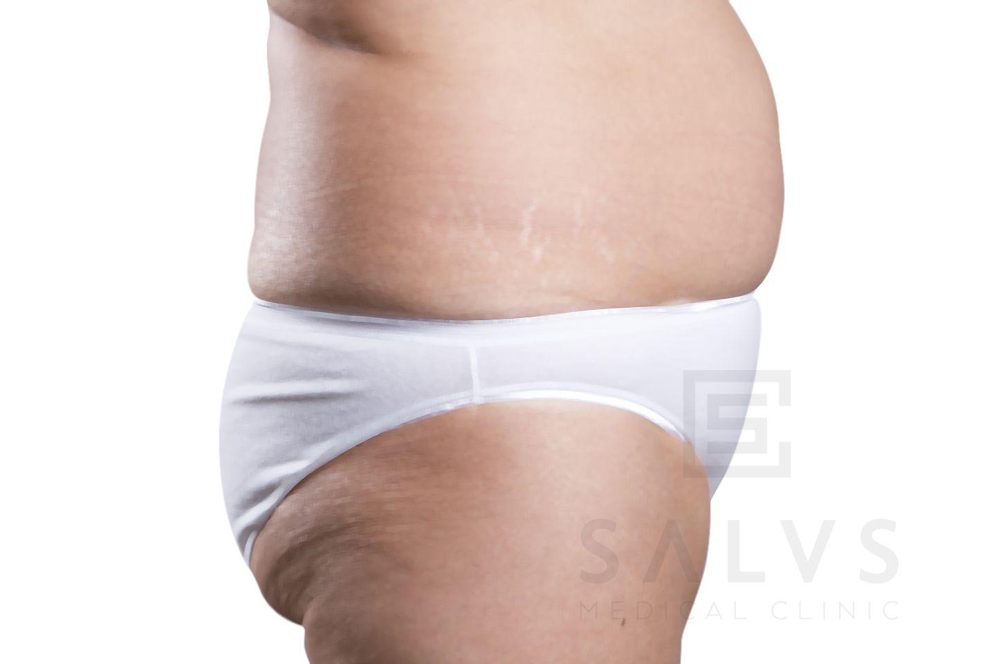 Abdominoplastia en Granada | Clínica Salus Medical Clinic