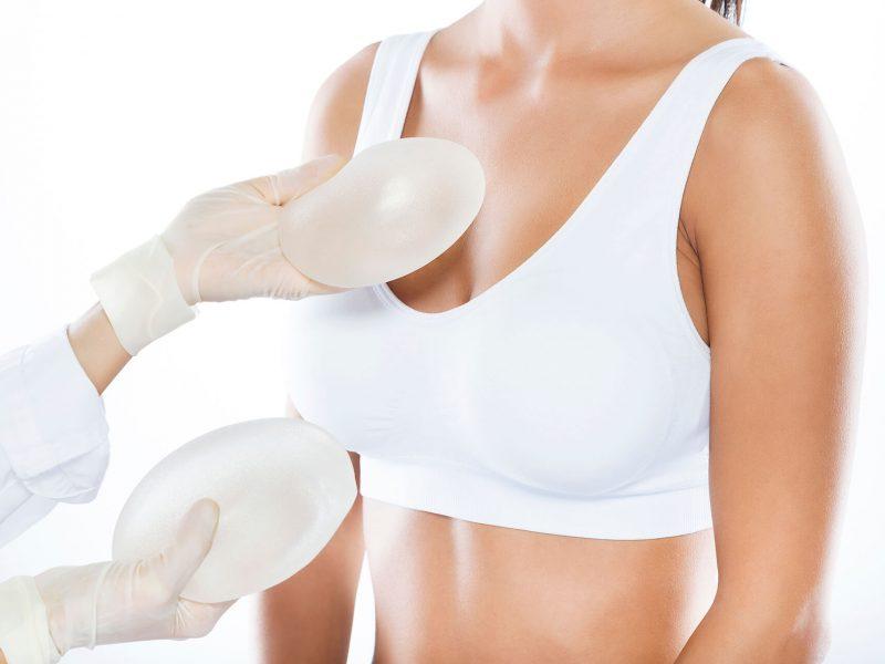 ¿Por qué y cuándo hay que reemplazar los implantes mamarios?
